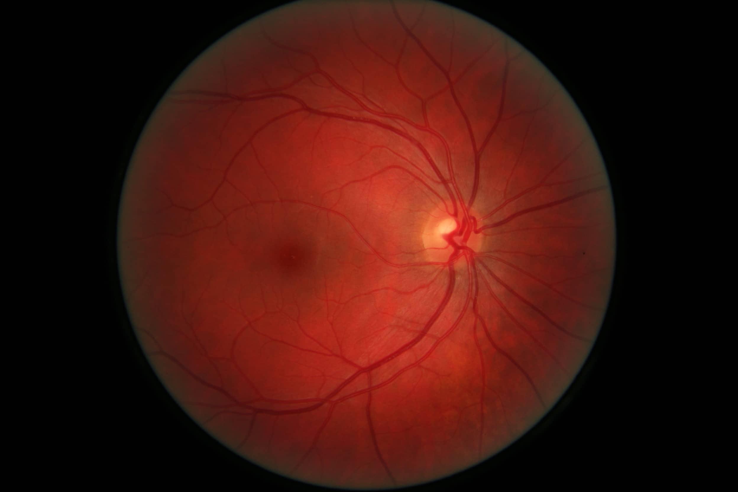 retina normala dmlv